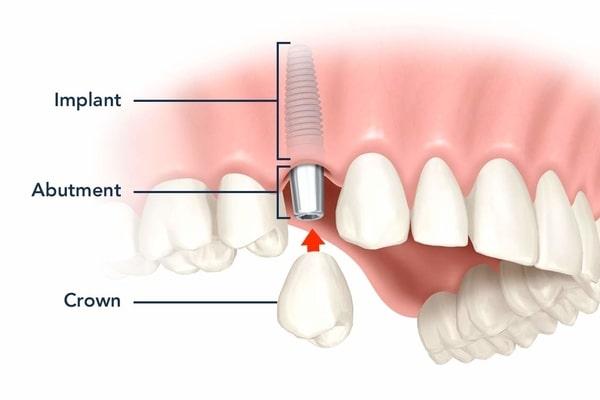 Trồng răng implant thay thế răng mất