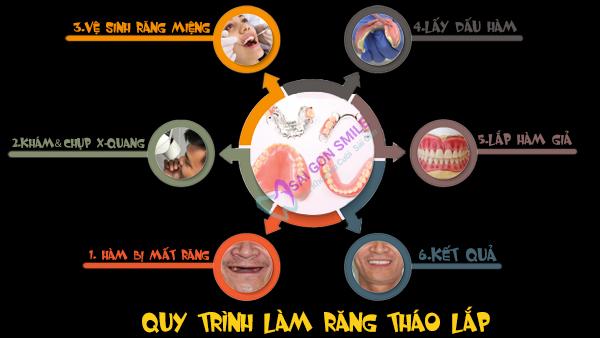 Quy trình làm răng tháo lắp