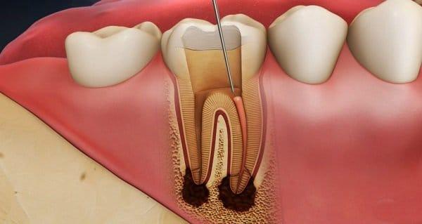 chữa tủy răng mất bao lâu thời gian mới xong