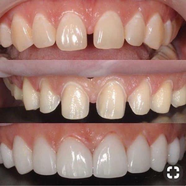 Răng hở được bọc răng sứ