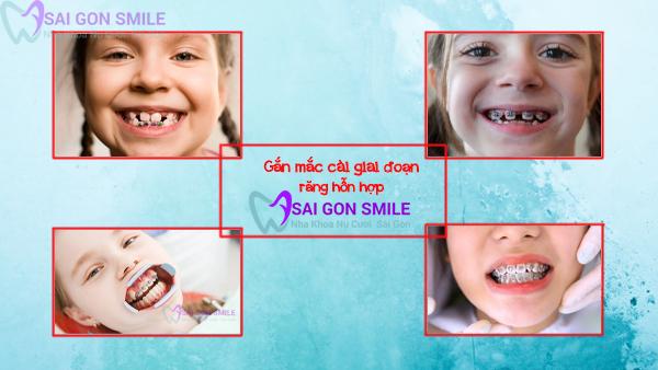 gắn mắc cài răng hỗn hợp