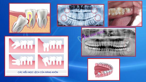 Các trường hợp nhổ răng số 8