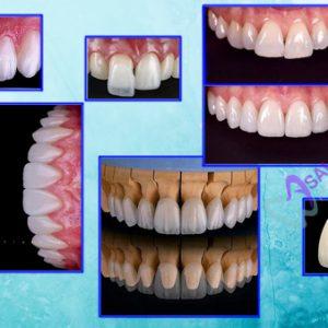 răng toàn sứ, răng sứ zicornia, răng sứ cercon, răng sứ Lava, răng sứ ngọc trai