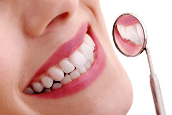 Phục hồi men răng bị mất do sâu răng