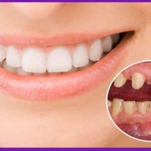 Bọc Răng Sứ Có Tốt Không? Những Điều Bạn Cần Biết
